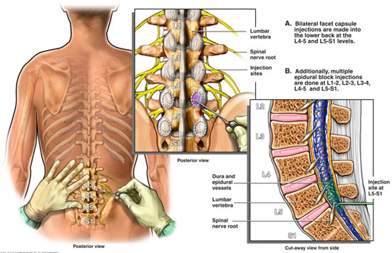 lumbar epidural steroid injection vs surgery