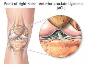 Knee Ligament Injury