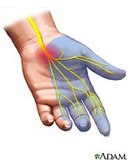 Hand problem