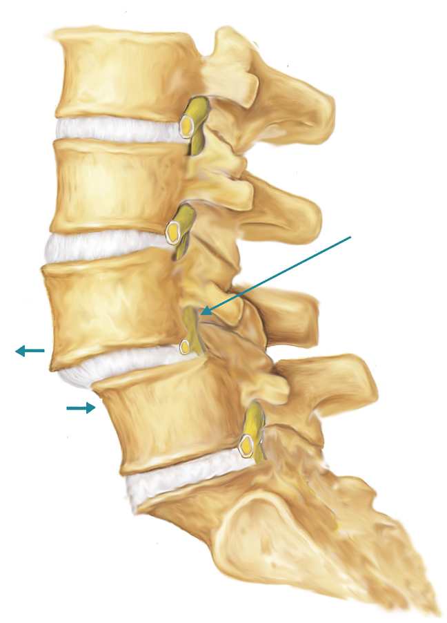 grades listhesis In anterolisthesis, the upper vertebral body is positioned abnormally compared to the vertebral body below it  (20% slippage), while grade 4 is severe (100%.