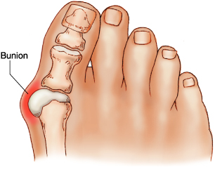 Bunion and Hallux Valgus