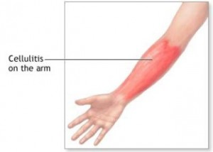 arm cellulitis, elbow cellulitis