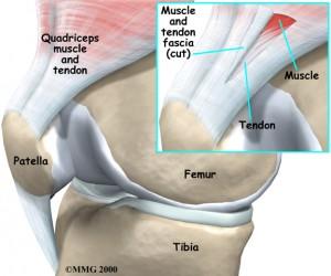 Patellar Tendonitis