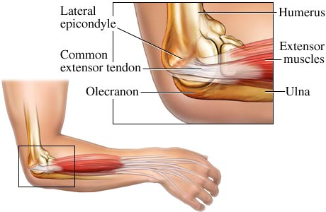Elbow Pain Specialist Clinic