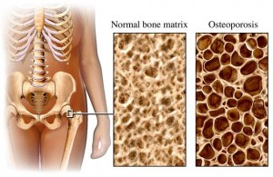 Osteoporosis vs Normal Bone