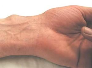 Ganglion Wrist Cyst