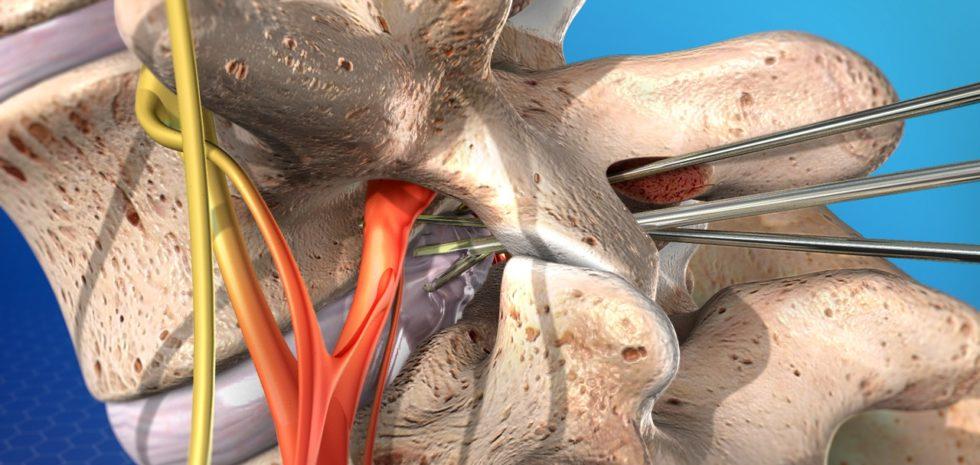 Microdiscectomy