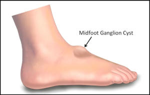 Midfoot ganglion cyst