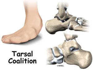 Tarsal Coalition