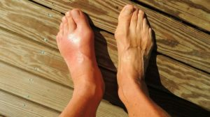 Foot Pain Gout