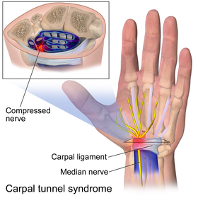 Wrist Pain Clinic