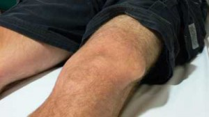Dislocation of Knee