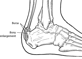 Haglund's Deformity Syndrome