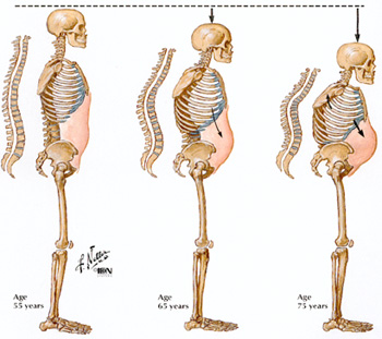Osteoporosis and Aging