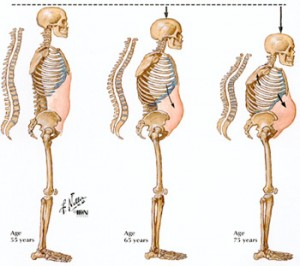 Reduced height happens in Osteoporosis