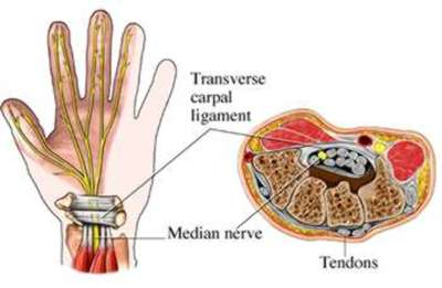 hand and wrist injury