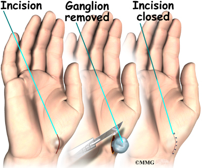 ganglion cyst removal