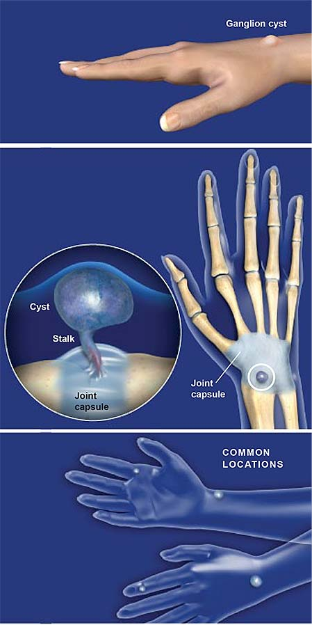 ganglion cyst on hand