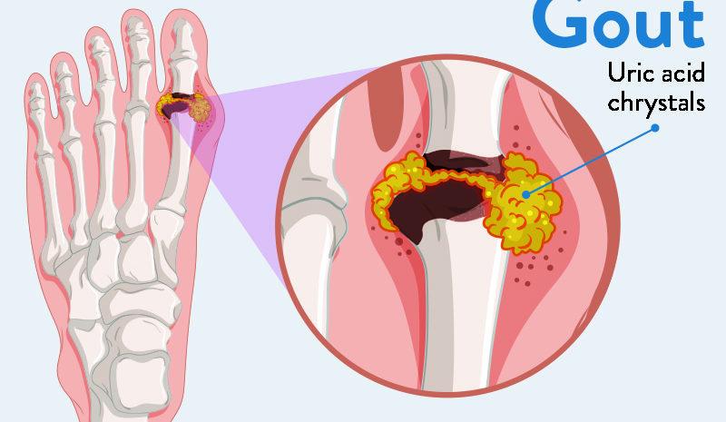 Gout Pain Clinic