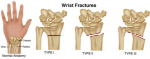 Wrist Fracture Clinic
