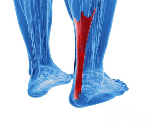 achilles tendonitis