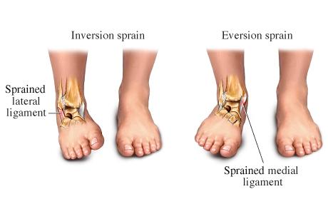 ankle sprain clinic