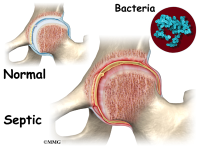 Septic Arthritis in Kids