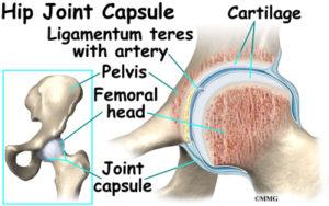 Hip Synovitis