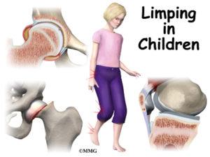child limping