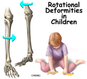 Rotational Deformities