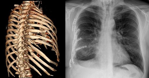 Ribs fracture